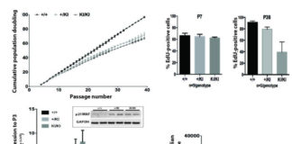 Endogenous locus-driven H-Ras G12V expression induces senescence-like phenotype in primary fibroblasts of the Costello syndrome mouse model